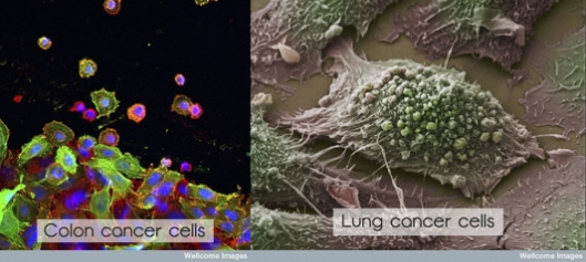 colon and lung cancer cells